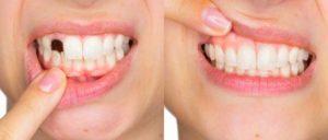 Happy Smile, come si usa, composizione, funziona, ingredienti