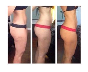 Perfect Body Cellulite, dove si compra, prezzo, farmacia, amazon