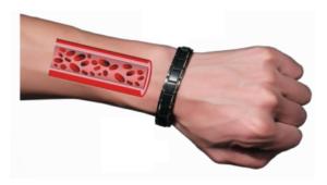 Therapeutic Bracelet, amazon, dove si compra, prezzo, farmacia