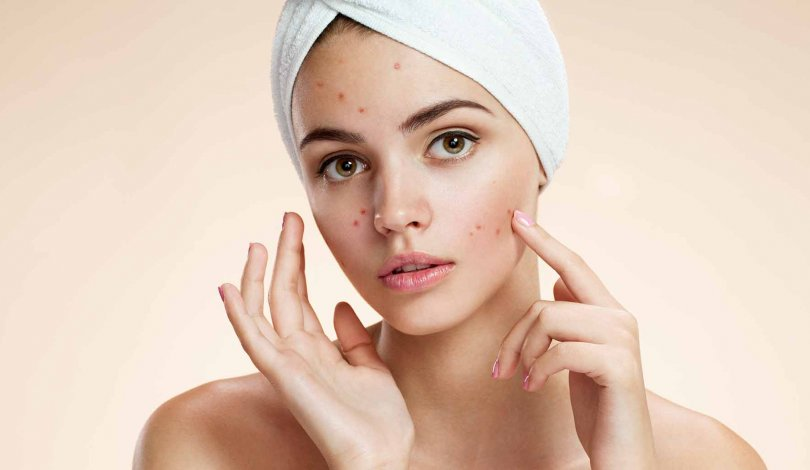 Skin Relax, prezzo, dove si compra, farmacia, amazon