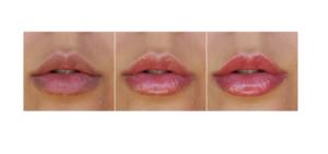 Vip's Lips,composizione, funziona, come si usa, ingredienti