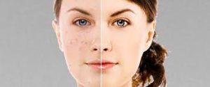 Bright Skin, effetti collaterali, controindicazioni