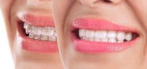 Fast Easy Smile, dove si compra, prezzo, amazon
