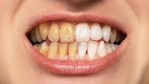 OralCare Pro, effetti collaterali