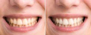 OralCare Pro, funziona, come si usa